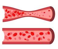 Blutige Arterie Blockierung von Blutgefäßen Stockfotos