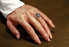 Blutige Hand Stockfoto