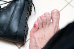 Blutige schreckliche Blase auf menschlichen Füßen mit den neuen schwarzen Lederschuhen, die herum legen stockbild