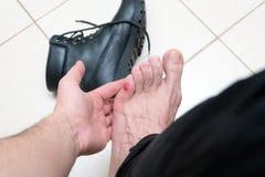 Blutige schreckliche Blase auf menschlichen Füßen mit den neuen schwarzen Lederschuhen, die herum legen lizenzfreie stockfotografie