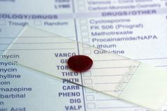 Blutprobe Lizenzfreie Stockfotos