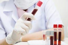 Blutprobe stockbild