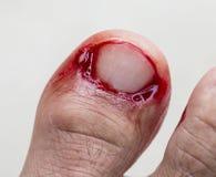 Blutung an der Zehe. Lizenzfreies Stockfoto