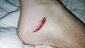 Blutung von der Hautwunde lizenzfreie stockbilder