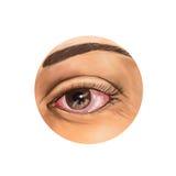 Blutunterlaufenes Auge Lizenzfreie Stockbilder