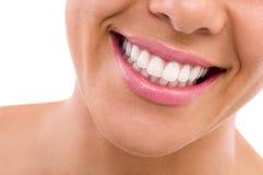 A boca aberta da mulher, dentes perfeitos Foto de Stock