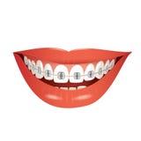 Boca de sorriso com cintas Fotografia de Stock