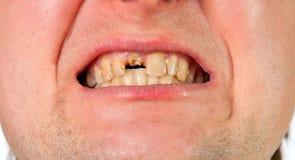 Boca del hombre joven con el diente quebrado foto de archivo