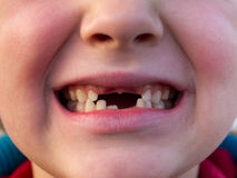 Boca del niño con los dientes cambiantes Imagenes de archivo