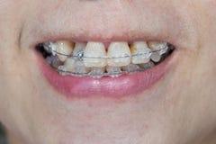 Boca del primer de dientes torcidos con los apoyos Fotografía de archivo libre de regalías