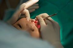 Boca paciente das crianças dentais do close-up do tratamento com ferramentas médicas Imagem de Stock Royalty Free