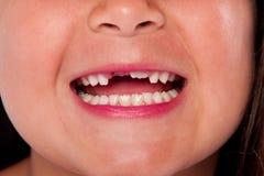 Boca que falta de los dientes Fotos de archivo libres de regalías