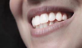 Boca sonriente de los dientes de la mujer Fotografía de archivo libre de regalías