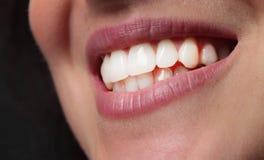 Boca sonriente de los dientes de la mujer Fotos de archivo