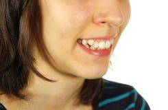 Bochtige tanden Stock Foto's