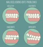 Bochtige tanden Malocclusionproblemen Royalty-vrije Stock Afbeeldingen