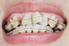 Bochtige tanden met steunen royalty-vrije stock foto
