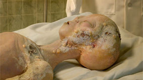 Body of Alien Crash Victim at the International UFO Museum and R. Alien body on gurney being examined after it's spaceship crashed near Roswell. A display at the Royalty Free Stock Image