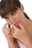 Body care - Female teenager with acne problem. Squeezing pimple on skin Royalty Free Stock Images
