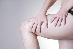 Body care, skin peeling legs Stock Image