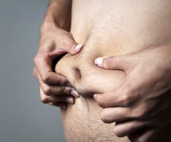 Body fat. A man pinches his body fat stock photography