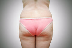 The body of a fat woman Royalty Free Stock Photo