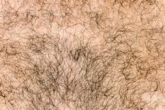 Body hair close-up. Hairy background.