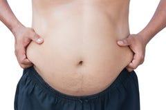 Body man fat Stock Photo