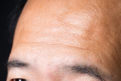 Body Part Asian skin forehead. Body Part of Asian skin with forehead on Face, close up, eldery stock image