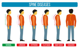 Body posture defect. Vector infographics of spine diseases. Scoliosis and lordosis medical diagrams. Spine backbone, spine diagnosis, diagnostic spine symptom Stock Photos