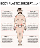 Body woman correction. Cellulite fat, plastic surgery  infographics for posters and brochures. Breast lift and implants, thighs lift, liposuction, tummy tuck Stock Image