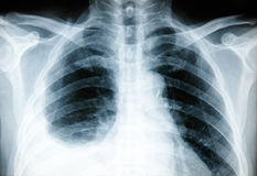 Body X-ray Stock Photos