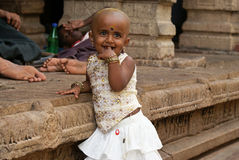Bold girl with ritually shaven head. Small girl in a hindu temple in Srirangam with ritually shaved head. The hair was offered to God Vishnu, taken on 28-08-2010 Royalty Free Stock Image
