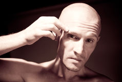 Bold head man Stock Photography