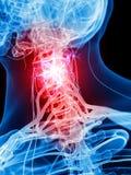 Boleśni karkowi nerwy ilustracja wektor