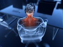 Boleśni mięśnie ilustracja wektor