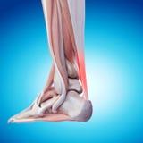 Bolesny Achilles ścięgno ilustracji
