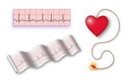 Bomba de relojería cardiaca con la cuerda del det + 2 tiras de EKG Fotografía de archivo