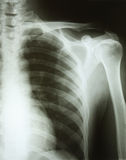 Bone. Photo x-ray arm shoulder rib royalty free stock photo