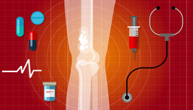 Bone cancer health medication anatomy medical care cure Royalty Free Stock Images