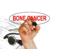 BONE CANCER. Writing word BONE CANCER with marker on white background made in 2d software Stock Image