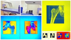 Bone density scan colorful collage Royalty Free Stock Photo