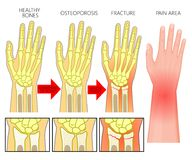 Bone fracture_Wrist fracture osteoporosis royalty free illustration