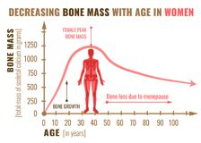 Bone mass decreasing. Decreasing bone mass with age in women. Detailed infographic in beige, brown and pink colors isolated on a white background. Vector royalty free illustration