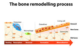 Bone remodelling process. The bone remodeling process involves the following steps: resorption, reversal, formation, mineralization and resting. In a healthy stock illustration