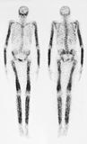Bone Scan. Test results with dark areas or hot spots in pelvic area showing higher concentration of radiation uptake which could indicate a tumor, disease, or stock photos