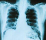 bones луч изображения комода x Стоковые Фото