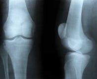 bones луч изображения x Стоковое Изображение