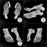 CT foot image. Bones of foot in three-dimensional CT royalty free stock images