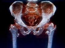 Bony pelvis CT Stock Images